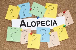 Alopecia word on cork bulletin board health concept